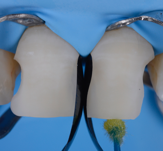 Application of adhesive on dentin