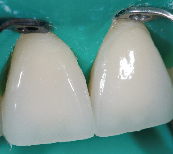 Both veneers in place after clean-up