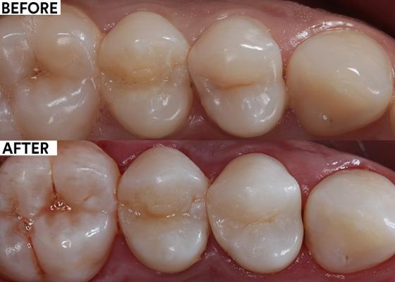 Hidden caries on upper first pre-molar