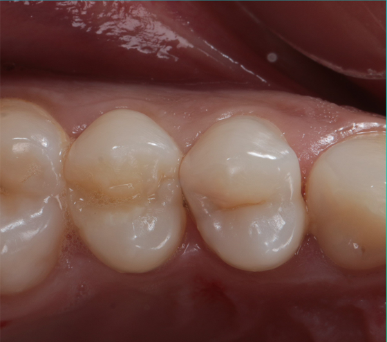 Initial situation (occlusal view)