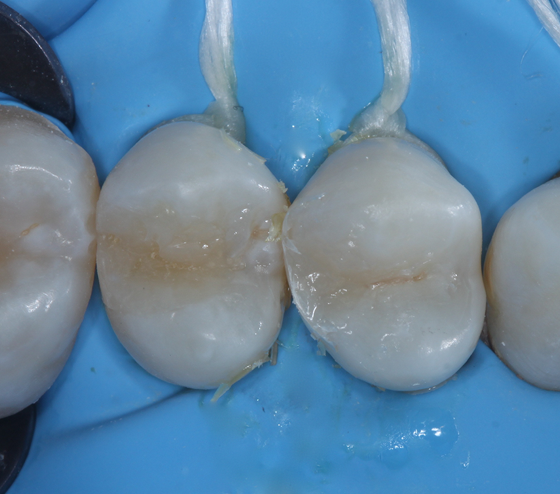 After the placement of universal restorative