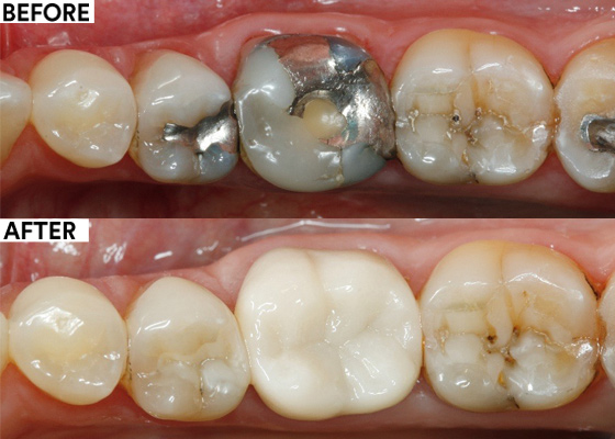 Self-adhesive cementation of a zirconia crown