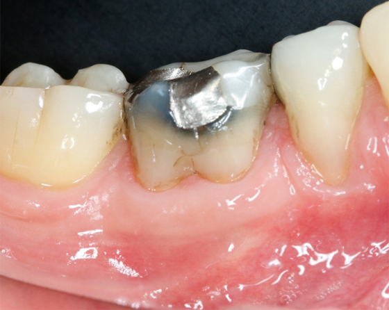 Initial situation (buccal view)