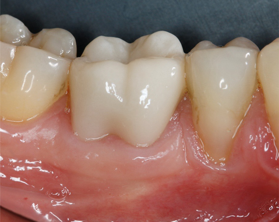 Final situation (buccal view)