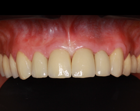 Esthetic all-ceramic restorations after one week in place