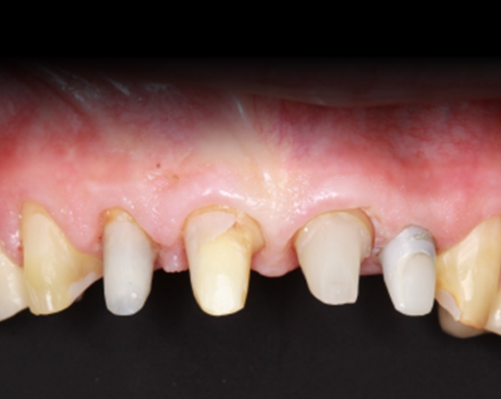 Retraction paste effectively exposed preparation margins and controlled bleeding