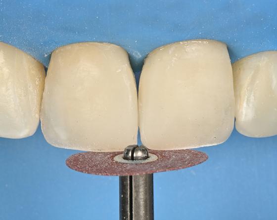 Teeth contoured