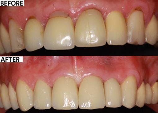 Functional and esthetic anterior repair