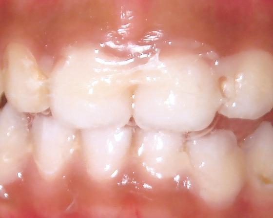 White varnish applied on teeth