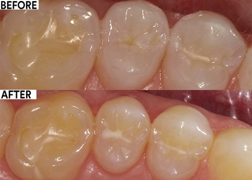 Adult sealants, an effective prevention tool
