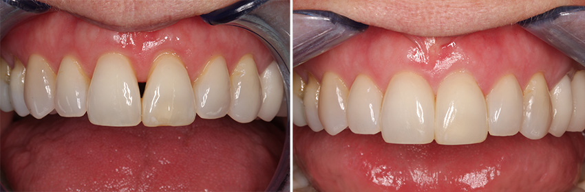 Black triangle anterior before and after