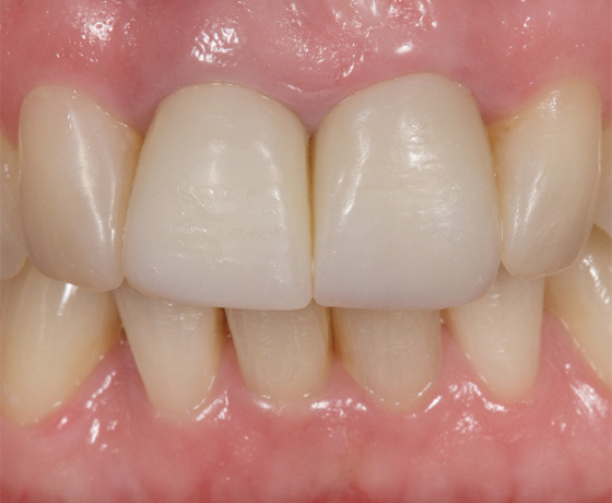 Provisional crowns after eight years in situ